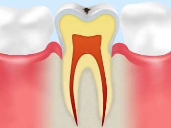 C0:ごく初期の虫歯