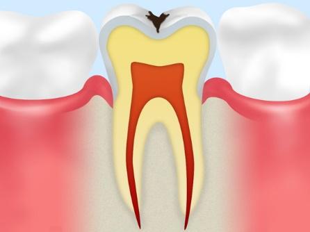 C1:エナメル質に穴を空けた虫歯
