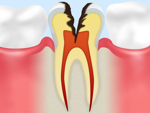 C3:歯髄に達した虫歯