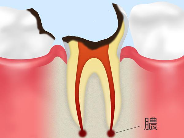 C4:歯の根に達した虫歯