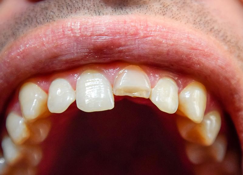 歯の外傷(ケガにより歯が抜けた・グラグラする場合)