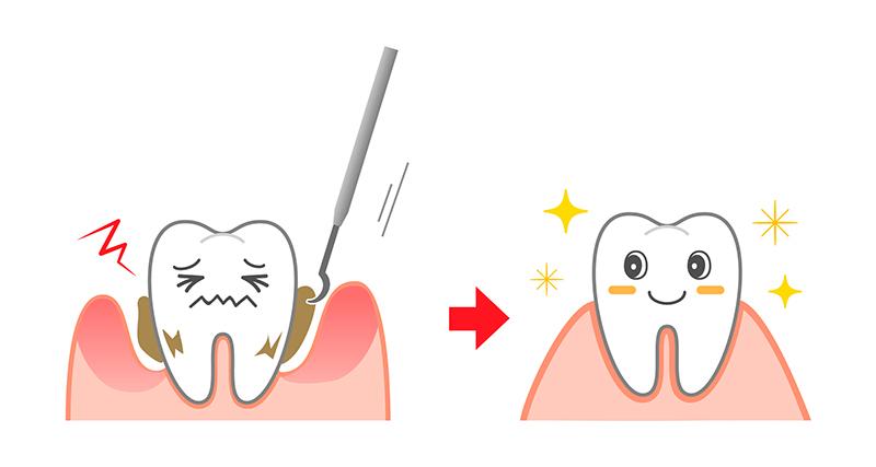 歯石除去・歯のクリーニング