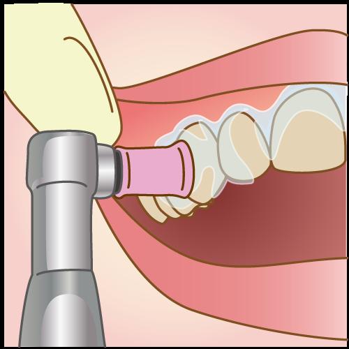 歯の表面のクリーニング