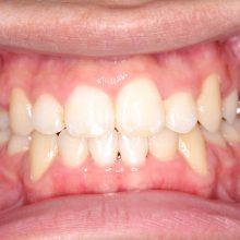 ワイヤーを使った矯正術後1|堺市のおとのは歯科