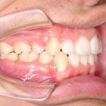ワイヤーを使った矯正術後2|堺市のおとのは歯科