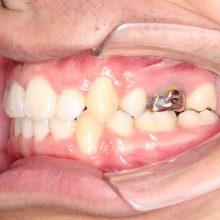 ワイヤーを使った矯正術後3|堺市のおとのは歯科